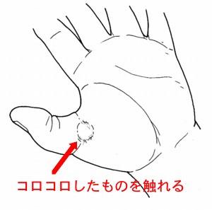 強直母指のしこり